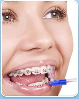 Latest Braces Treatments