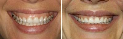 Cosmetic Dentist Los Angeles