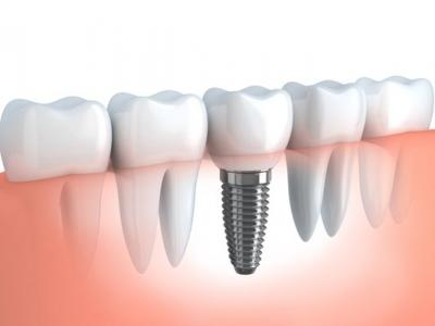 Dental Implants at Affordable Cost