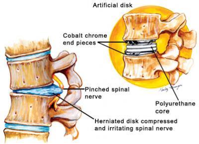 Lumbar Artificial Disc Replacement