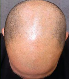 Baldness and Thin Hair Treatment SMP - Scalp Micro-Pigmentation