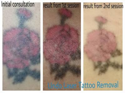 Removing Tattoos in Sessions