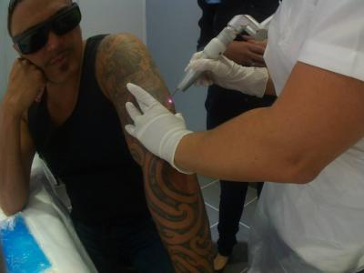Professional Tattoo Removal Services