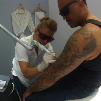 Hire Effective Tattoo Removals Sydney