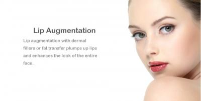 Lip Augmentation in Lahore, Pakistan