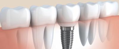 Emergency Dental Care Reston VA
