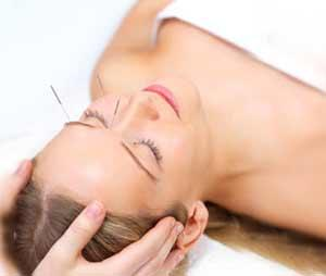 Acupuncture In Orange County