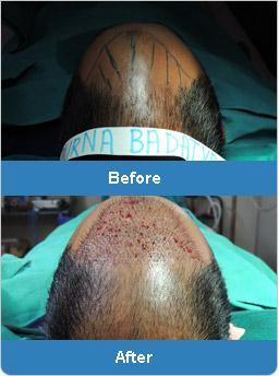 Hair Transplant Surgeons India