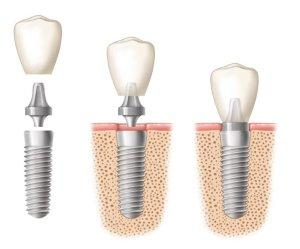 Dental Implants  near Tarpon Springs