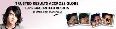 Hair Transplant Punjab at Cheapest Cost