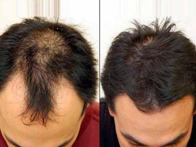 Best hair loss Treatment in Chandigarh