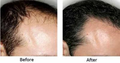 Treatment for hair loss in Chandigarh