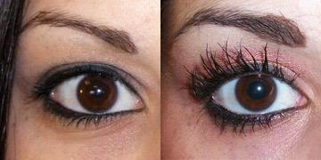 Look Younger with Eyelid Surgery in Wisconsin
