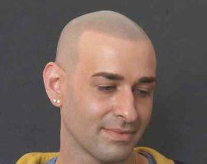 Need a Head Tattoo / Scalp Tattoo for your Balding head?