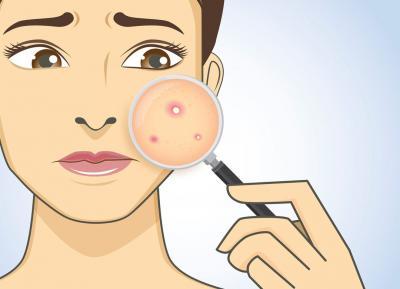 Ayurvedic skin care Diseases India