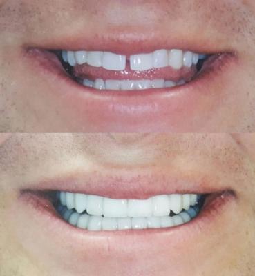 Century Smile