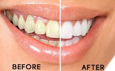 Teeth scaling in best dental hospital Hyderabad