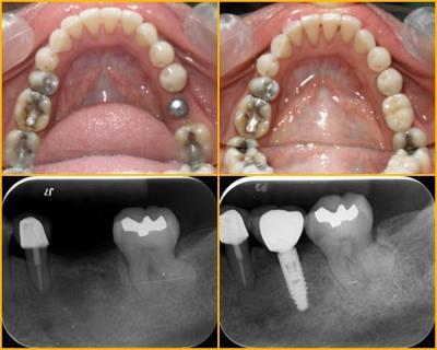 Dental Implants Fremont | Dental Specialist Fremon