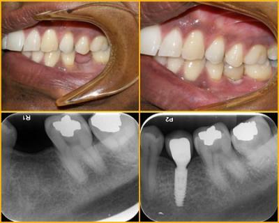 Dental Implants Fremont   Dental Specialist Fremon