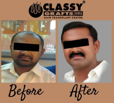 Cost of Hair Transplant in Bangalore