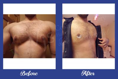 Top Quality Gynecomastia Treatment in Visakhapatna