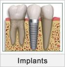 Get Dental Implants Treatment in Ahmedabad