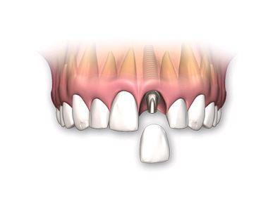 Florida Dental Care Miami